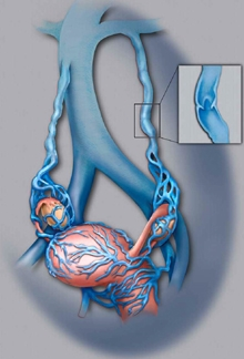 pelvic-image