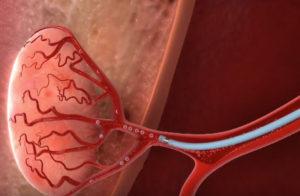 prostate-artery-embolisation
